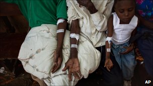 Haiti: Cholera Could Affect 650,000, Says UN