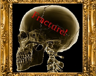 Fracture! (Week 11) – Short Story By: Eric Blair